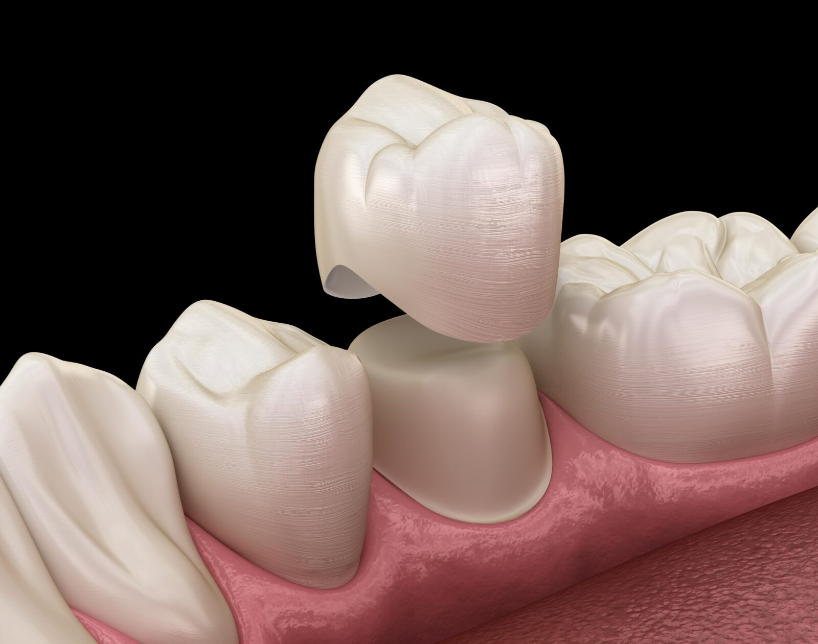 dental crown being placed on tooth