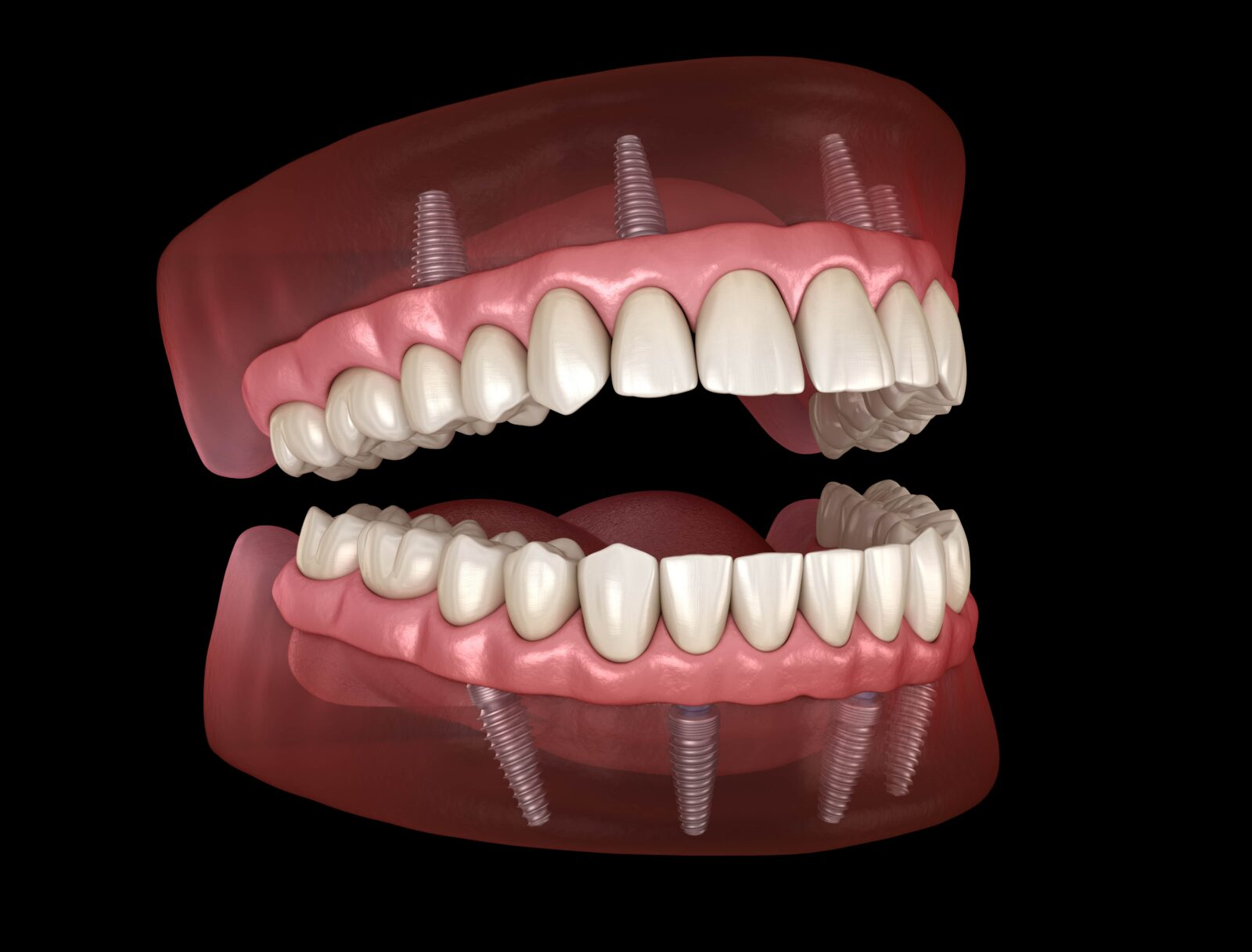 implant supported dentures for a full mouth reconstruction