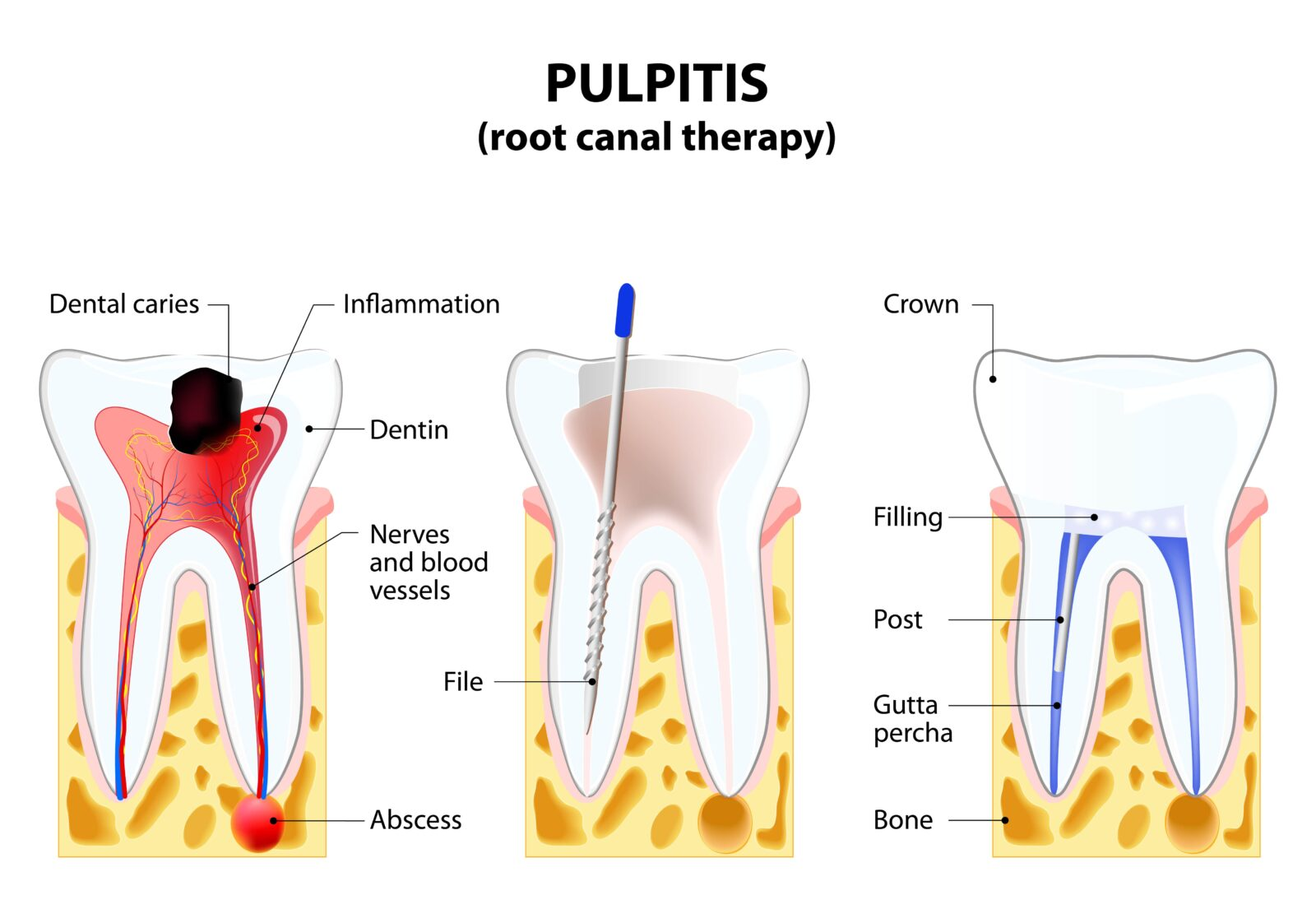 root canal steps