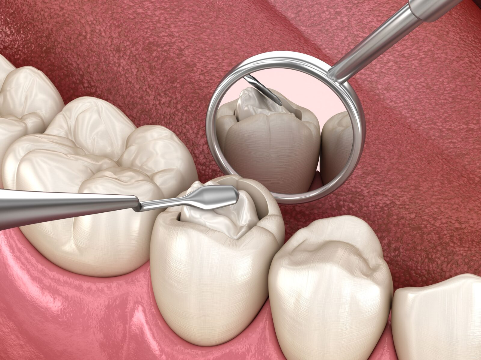 placing composite resin in a dental cavity