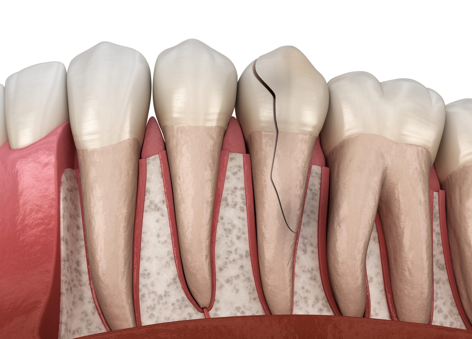 fractured tooth and tooth root
