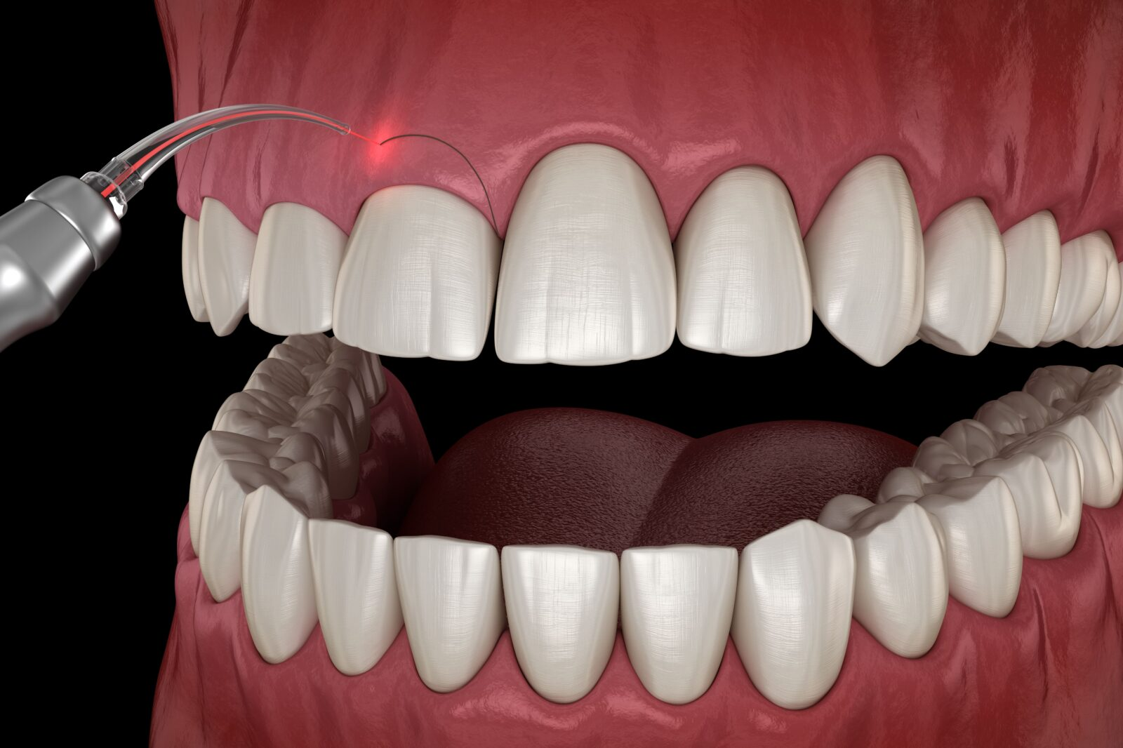 dental laser being used to remove excess gum tissue