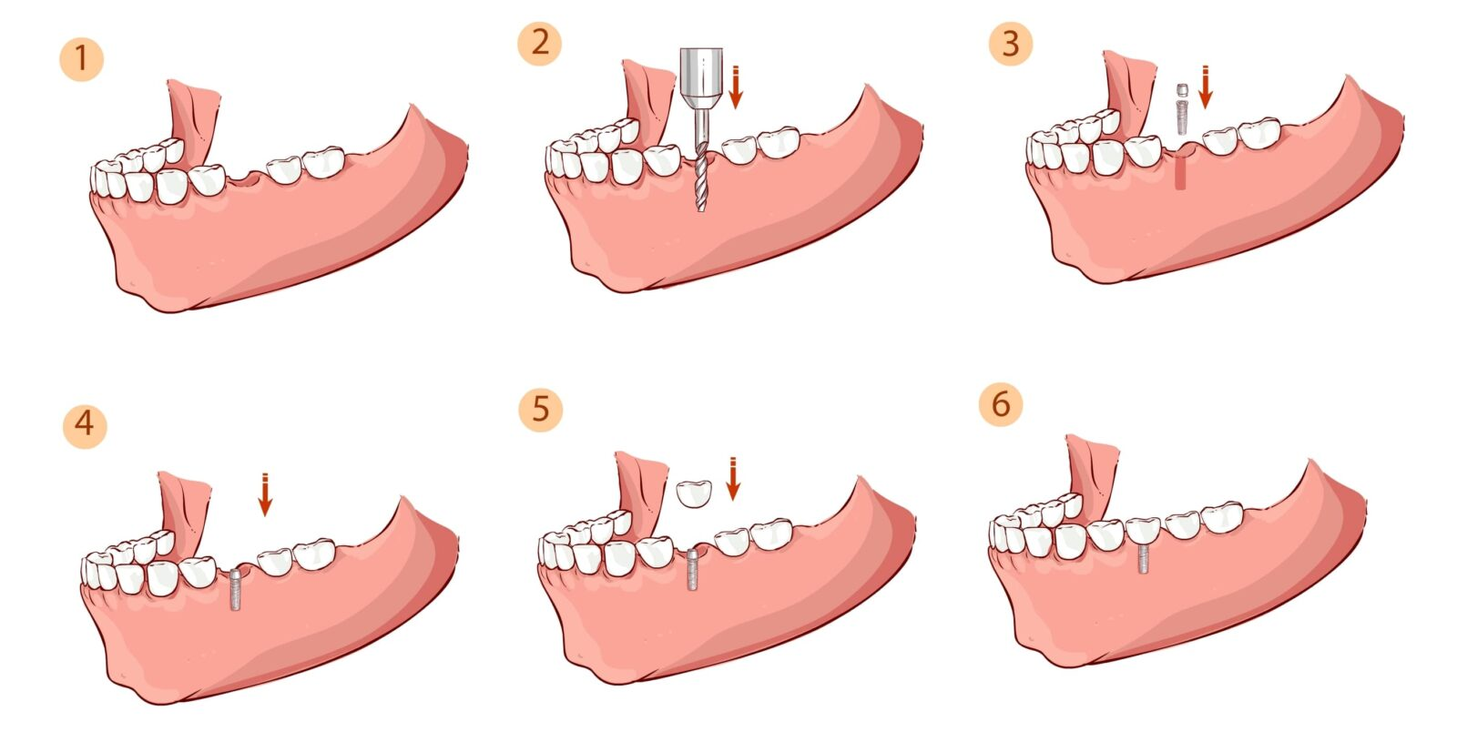 dental implant placement steps