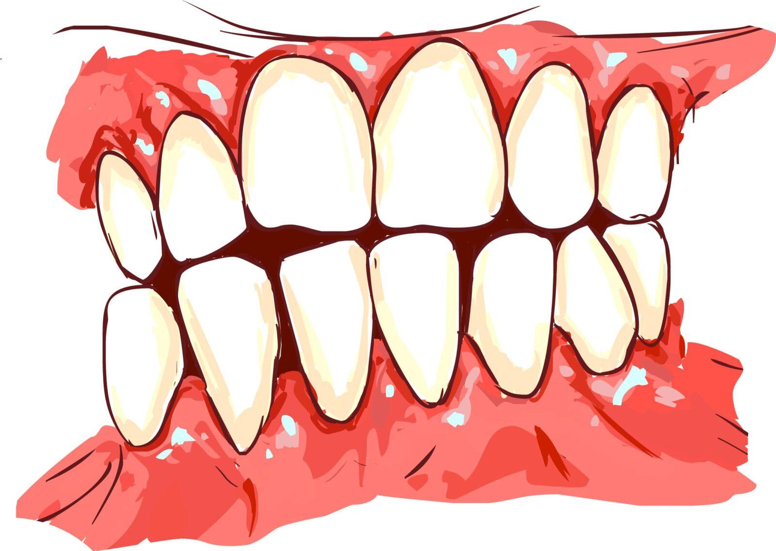 digital image of gum disease